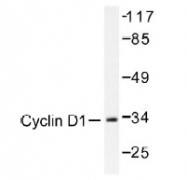 NB100-92258 - Cyclin D1