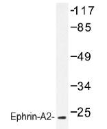 NB100-92287 - Ephrin-A2