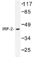 NB100-92317 - IRF2