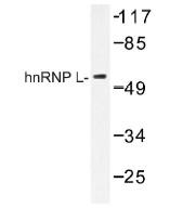 NB100-92318 - hnRNP-L / HNRNPL