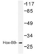 NB100-92323 - HOXB9 / HOX2E