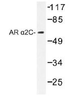 NB100-92328 - Alpha-2C adrenergic receptor