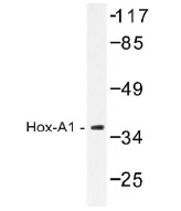 NB100-92347 - HOXA1 / HOX1F