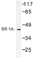 NB100-92418 - Serotonin receptor 1A (HTR1A)