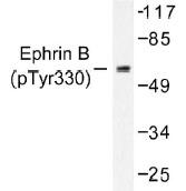 NB100-92527 - EPHB1