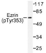 NB100-92532 - Ezrin