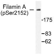 NB100-92534 - Filamin-A