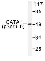 NB100-92538 - GATA1