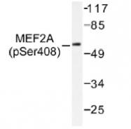 NB100-92577 - MEF2A