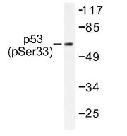 NB100-92603 - TP53 / p53