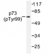NB100-92609 - Tumor protein p73 (TP73)