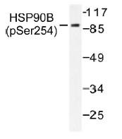 NB100-92691 - Endoplasmin / HSP90B1 / TRA1