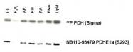 NB110-93479 - PDHA1