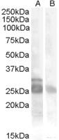 NB100-93518 - Myogenic factor 5 (MYF5)
