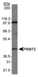 NB110-93593 - PRMT2