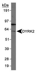 NB110-94452 - DYRK2