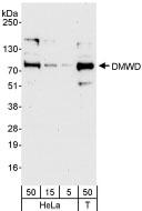 NB100-95001 - DMWD / DM9