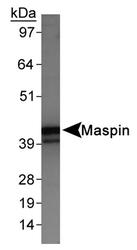 NB110-97377 - SERPINB5 / Maspin