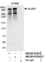 NB100-97824 - ALMS1