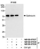 NB100-97837 - Optineurin / HIP7