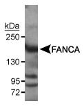 NB110-98673 - FANCA
