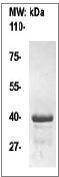 NBP1-74558 - alpha skeletal muscle Actin / ACTA1
