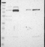 NBP1-87268 - PRKCA