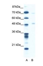NBP1-57981 - Pancreatic lipase / PNLIP