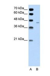 NBP1-59672 - PANX1