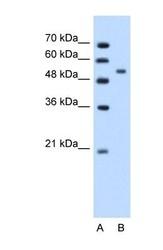 NBP1-56923 - Perilipin-1
