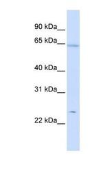 NBP1-54337 - Peroxiredoxin-2 / PRDX2