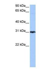 NBP1-53060 - Peroxiredoxin-3 / PRDX3