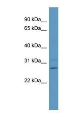 NBP1-56848 - Phosphoserine phosphatase