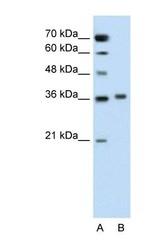 NBP1-60060 - Sarcosine oxidase