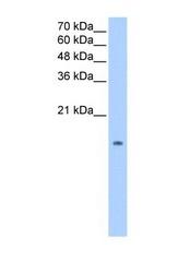 NBP1-58286 - Pleiotrophin / PTN