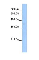 NBP1-58273 - Presenilin-2