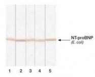 NB120-13059 - Natriuretic peptides B