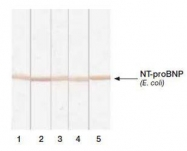 NB120-13111 - Natriuretic peptides B