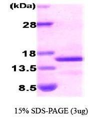 NBC1-18491 - Natriuretic peptides B