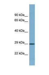 NBP1-56472 - Proline-rich protein 16 / PRR16