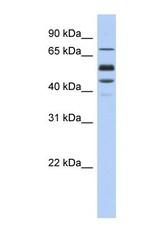 NBP1-59165 - Protein S / PROS1