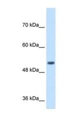 NBP1-59510 - SPPL2B