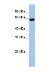 NBP1-69686 - Steryl-sulfatase