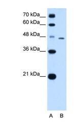 NBP1-59071 - Tapasin (TAPBP)