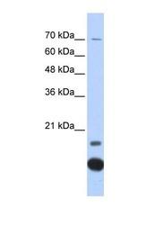 NBP1-54672 - Thioredoxin-2 / TRX2