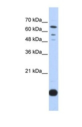 NBP1-54673 - Thioredoxin-2 / TRX2