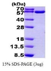 NBP1-44456 - Thioredoxin reductase 1 / TXNRD1