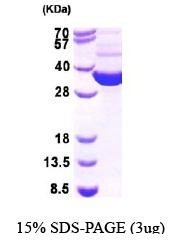 NBP1-44981 - Thioredoxin reductase 1 / TXNRD1