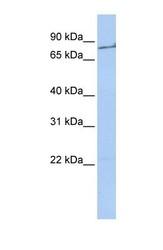 NBP1-58268 - Prothrombin (F2)