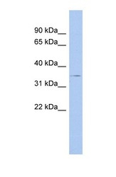 NBP1-59290 - Thrombopoietin